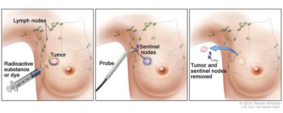 Sentinel-lymph-node-biopsy-article